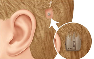 implanted device for the hearing impaired